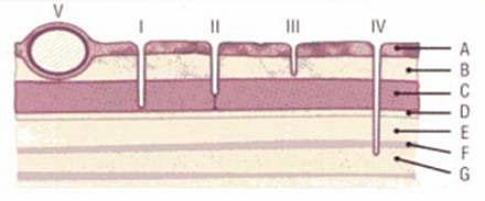Rhodesian Ridgeback - Dermoid Sinus - UFAW