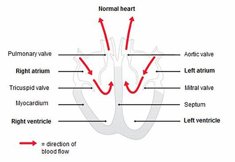 Dilated Cardiomyopathy figure 1