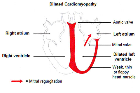 Dilated Cardiomyopathy figure 3