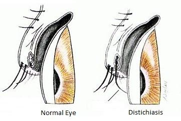 ... despite inverted eyelashes coming in to contact with the eye itself