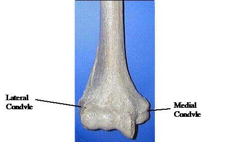 Elbow Dysplasia HCO figure 2