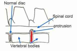 Intervertebral Disc Disease figure 3a